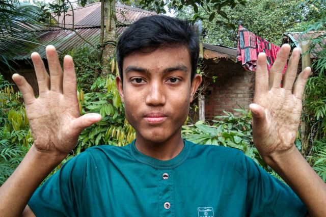 25/6/2019· a man in bangaladesh named abul bajandar has been suffering an extremely rare disease called epidermodysplasia verruciformis. The Family With No Fingerprints Bbc News