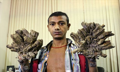 25/6/2019· 'tree man' begs for hands to be amputated to relieve pain: Tree Man Illness Global Times