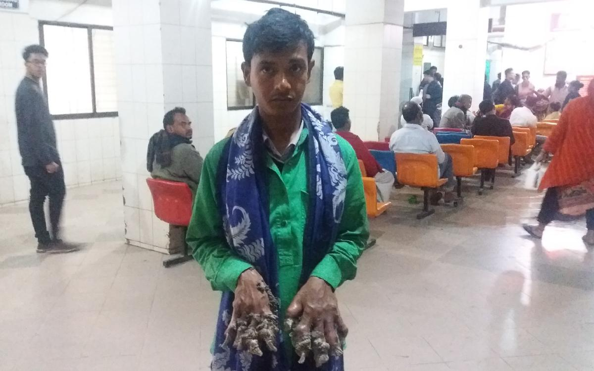 11/1/2017· dhaka, bangladesh — it may have taken a year and an insane number of surgeries, but this bangladeshi man couldn't be happier to finally have his hands and fe. Bangladesh Tree Man Wants Hands Amputated To Ease Pain Deccan Herald