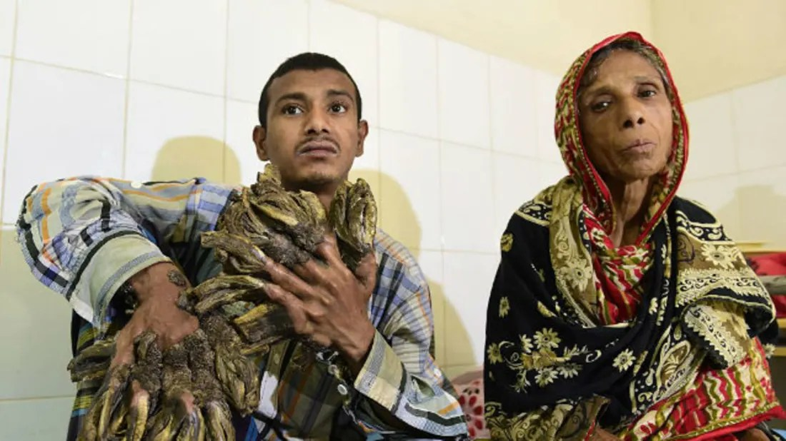 Abul bajandar, 28, has had over 20 operations to remove the warts, but a recent relapse … The Tree Man Of Bangladesh Gets His Hands Back Mental Floss
