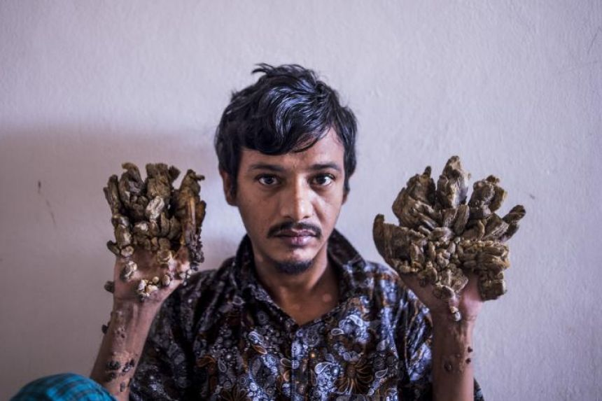 11/1/2017· dhaka, bangladesh — it may have taken a year and an insane number of surgeries, but this bangladeshi man couldn't be happier to finally have his hands and fe. Bangladesh Tree Man Wants Hands Amputated To Relieve Pain South Asia News Top Stories The Straits Times